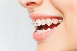 A woman wearing braces for Teeth Straightening in Bloomington IL